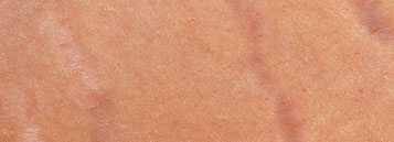 Stretch Mark Scar Fading System